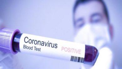 صورة الصحة العالمية تحدد عدد الأيام التي يظل فيها المصاب بكورونا ناقلا للعدوى