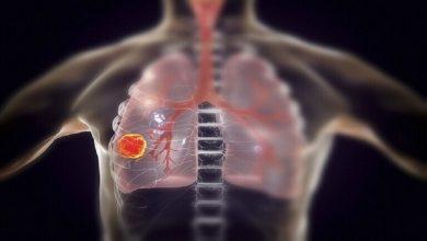 صورة ثلاثة أدوية شائعة تمنع الإصابة بسرطان الرئة