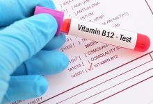 صورة إحساسان غريبان على الجسم يكشفان نقص فيتامين B12!