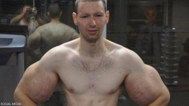 """صورة """"بوباي روسيا"""": أشعر بالغباء بعد """"عملية العضلات"""""""